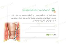 صورة أعراض البواسير و 7 نصائح طبية للوقاية منها