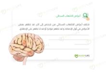 صورة أعراض الالتهاب السحائي