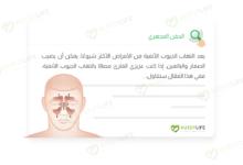 صورة التهاب الجيوب الأنفية وكيفية التعامل معه