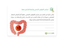صورة اعراض القولون العصبي وكيفية التخلص منها