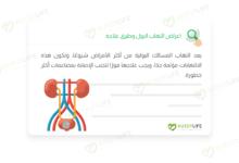 صورة اعراض التهاب البول وطرق علاجه