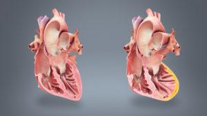 أسباب الجلطة القلبية